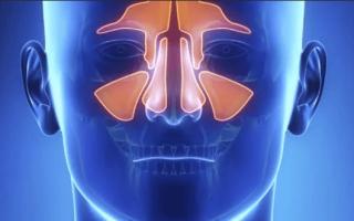 Болит лоб при насморке: что делать и как лечить?