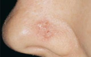Опухоль в носу фото