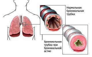 Отхаркивающие средства при бронхиальной астме у взрослых