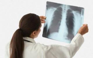 Как долго болеют пневмонией