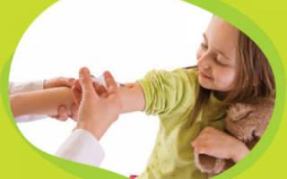 Пневмококк симптомы у детей