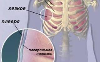 Показания и техника пункции плевральной полости