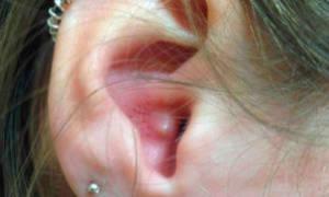 Прыщ на козелке уха