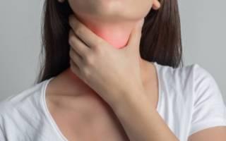 Хронический тонзиллит фото горла у взрослого