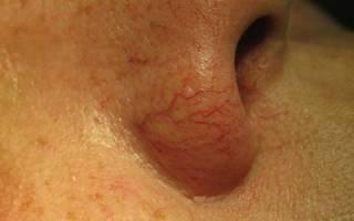 Почему лопаются капилляры в носу