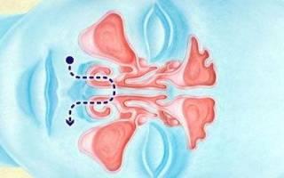 Чем промывать нос при насморке (в домашних условиях)