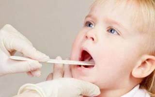 Признаки вируса эпштейн барра у ребенка