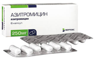 Антибиотик от горла взрослым 3 таблетки