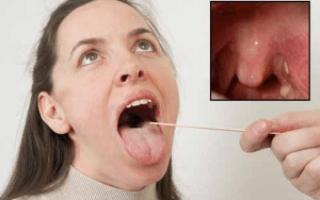 Что делать если болит горло и гланды опухли — Простуда