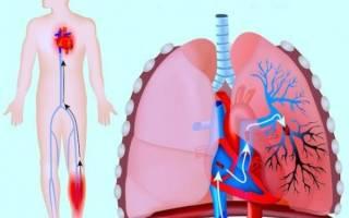 Ком в горле и боль в грудине — Все про суставы
