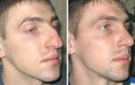 Как снять отек носа после операции — OtekamNET