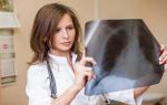 Пневмония: симптомы и лечение воспаления легких