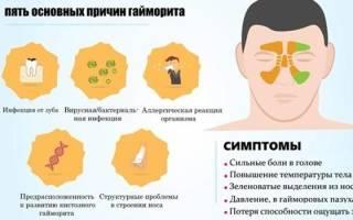 Антибиотик при гайморите взрослым название препаратов таблетки