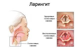 Ларингит лечение дома