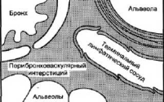 Отек легких википедия