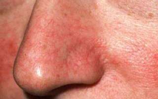 Как лечить купероз на носу